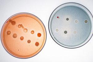 """"""" ... hemos hecho ensayos y hemos visto que ocurre si utilizamos o no microorganismos en fertiriego con lechuga y pimentones y se nota la diferencia. Un crecimiento fuerte, entre otras características"""", señala la Dra. Stoll."""
